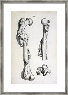 Bone Deformities Framed Print