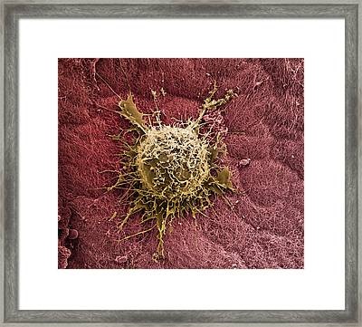 Bone Marrow Stem Cell On Cartilage Framed Print