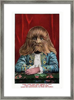 Boy With Hypertrichosis Framed Print