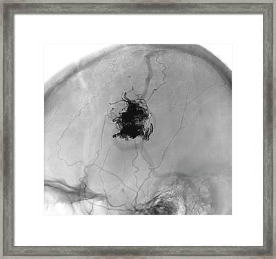 Brain Blood Vessel Malformation Framed Print by Zephyr