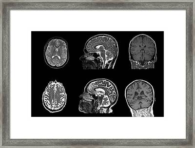Brain Changes With Ageing Framed Print