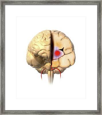 Brain Haemorrhage Framed Print by Claus Lunau