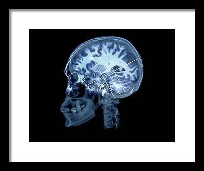 Psychiatric Framed Prints