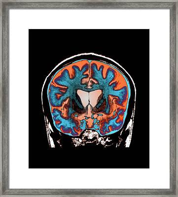 Brain In Huntington's Disease Framed Print by Zephyr