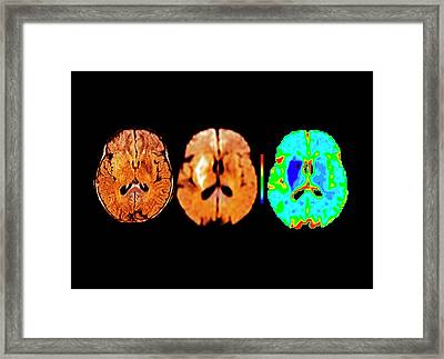 Brain In Ischemic Stroke Framed Print by Zephyr