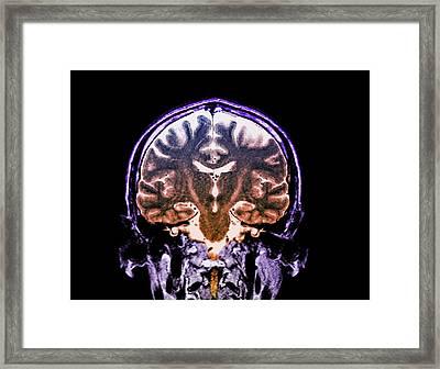 Brain In Motor Neurone Disease Framed Print by Zephyr