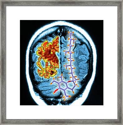 Brain Mri Scan And Vitamin E Molecule Framed Print