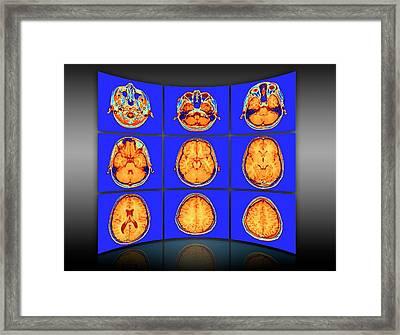 Brain Mri Scans Display Wall Framed Print by Alfred Pasieka