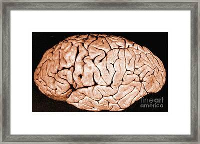 Brain Of Helen Hamilton Gardener Framed Print