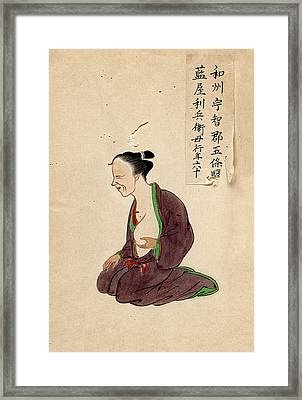 Breast Cancer Patient Framed Print by National Library Of Medicine