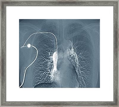 Breast Cancer Treatment Framed Print