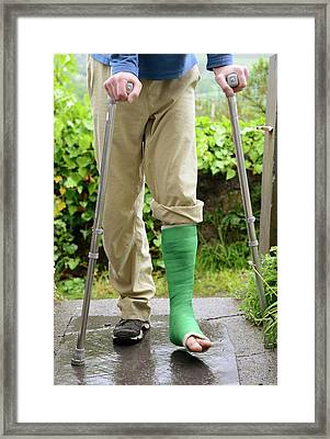 Broken Ankle And Crutches Framed Print