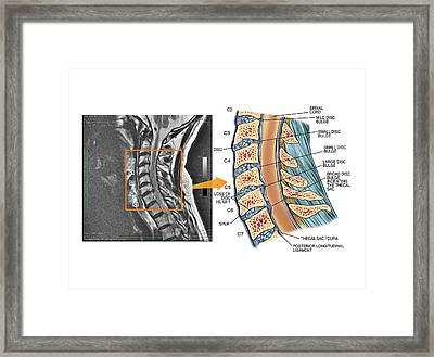 Bulging Discs In The Cervical Spine Framed Print by John T. Alesi