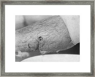 Bullet Entry Wound Framed Print by Library Of Congress