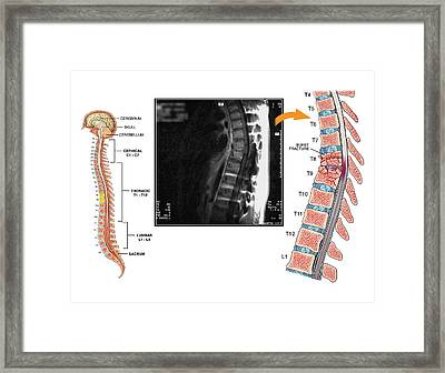Burst Fractures Of The Thoracic Spine Framed Print by John T. Alesi