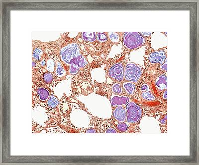 Calcified Lung Tissue Framed Print by Steve Gschmeissner