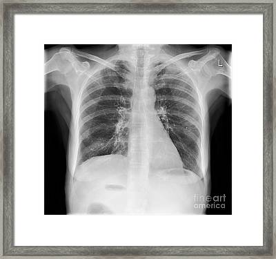 Calcified Tissues, X-ray Framed Print by Science Photo Library
