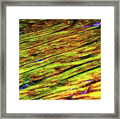 Cardiac Muscle Framed Print by R. Bick, B. Poindexter, Ut Medical School