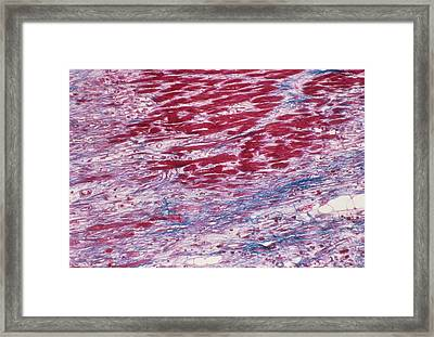 Cardiomyopathy Framed Print