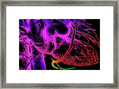 Cardiovascular System Framed Print by K H Fung