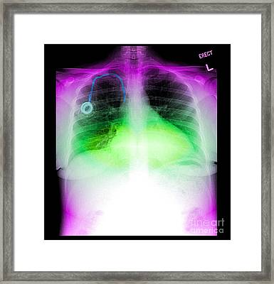 Central Venous Port, X-ray Framed Print by Living Art Enterprises