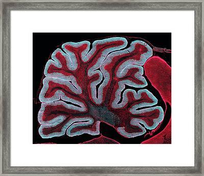 Cerebellum From A Brain Framed Print