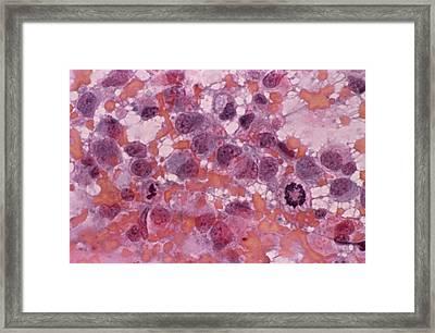 Cervical Smear Showing Endometrial Framed Print