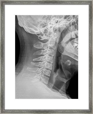 Cervical Spine X-ray Framed Print by Photostock-israel