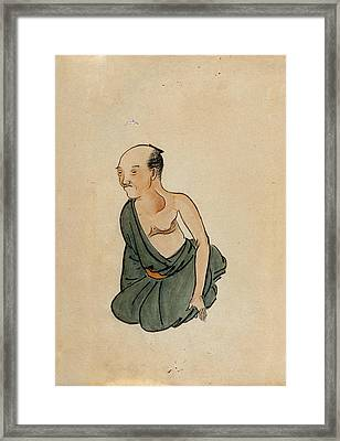 Chest Cancer Patient Framed Print by National Library Of Medicine