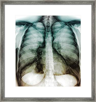 Chest Infection Framed Print by Zephyr
