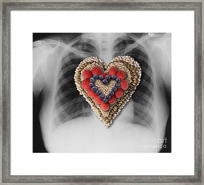 Chest X-ray & Heart-healthy Foods Framed Print by Gwen Shockey