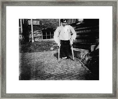 Child Labor, Frank P., Legs Were Cut Framed Print by Everett