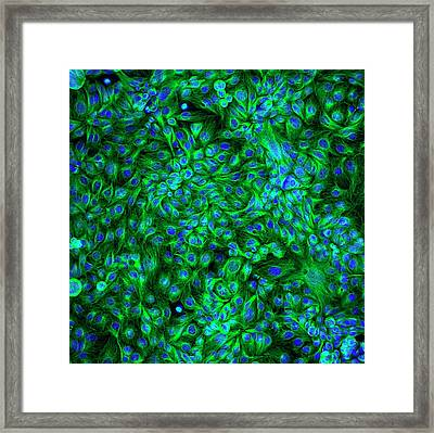 Colon Cancer Cells Framed Print by Ammrf, University Of Sydney