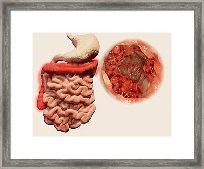Colon Cancer Framed Print by Juan Gaertner