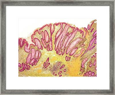 Colorectal Polyp Framed Print