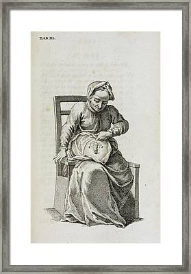 Colostomy Framed Print by British Library