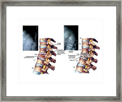 Compression Fracture Of Thoracic Vertebra Framed Print by John T. Alesi