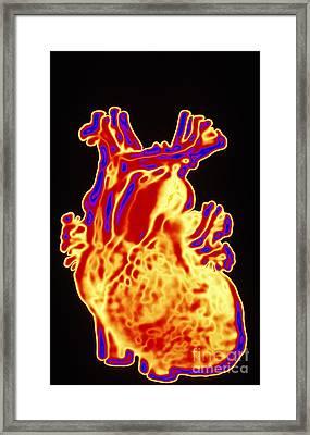 Computer Enhanced Heart Framed Print by Scott Camazine