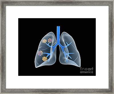 Conceptual Image Of Human Lungs Framed Print by Stocktrek Images