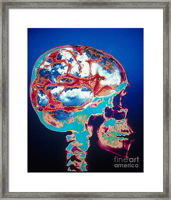 Conceptual Skull With Blue Sky Brain Framed Print