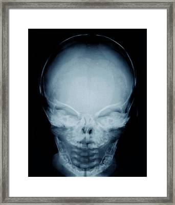 Congenital Hypothyroidism Framed Print