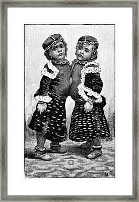 Conjoined Twins, 1893 Framed Print by Science Photo Library