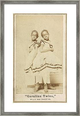 Conjoined Twins Framed Print by Library Of Congress