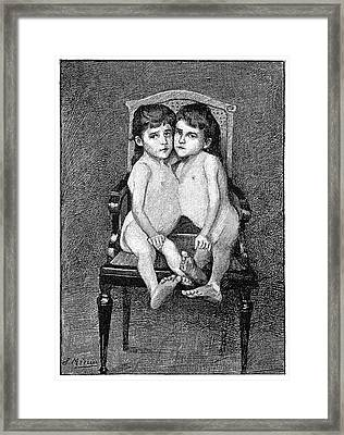 Conjoined Twins Framed Print by Science Photo Library