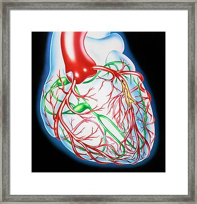 Coronary Atherosclerosis Framed Print by John Bavosi