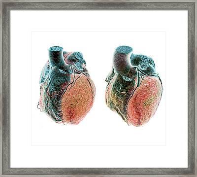 Coronary Stent Framed Print by Zephyr