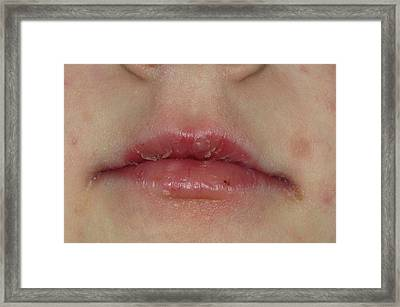 Cracked Peeling Lips After Viral Infectio Framed Print by Dr P. Marazzi/science Photo Library