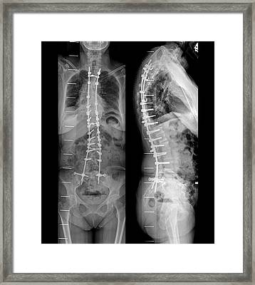 Curvature Of The Spine After Surgery Framed Print by Zephyr
