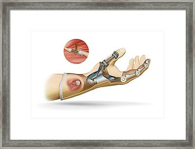 Cybernetic Hand Prosthesis Framed Print