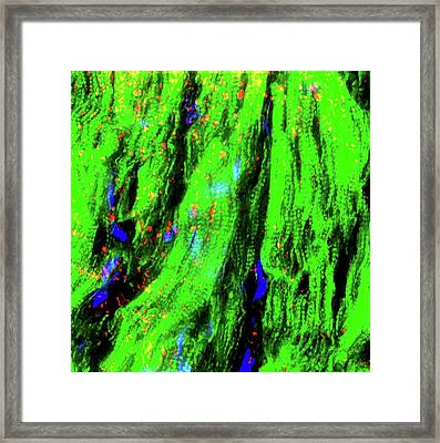 Damaged Heart Tissue Framed Print by R. Bick, B. Poindexter, Ut Medical School/science Photo Library